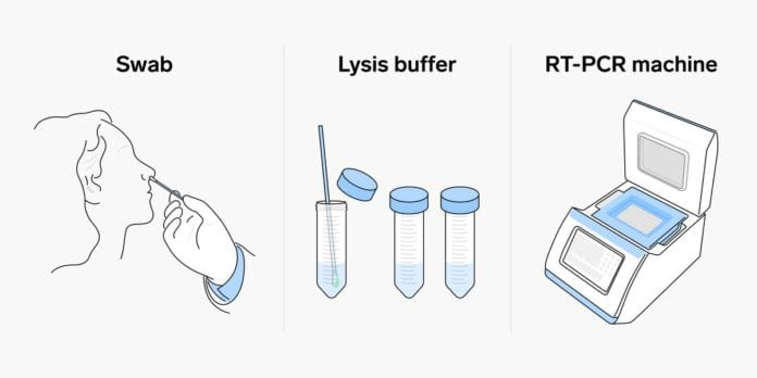 RT-PCR test